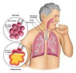 obat herbal kanker paru paru